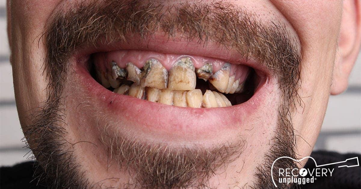 Drugs-Teeth-FB.jpg
